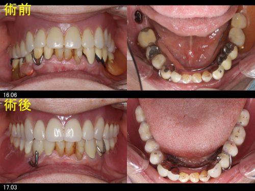 義歯の症例4