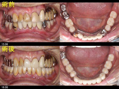 入れ歯の写真